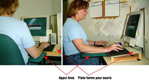Figure 3 - Support pour l'avant-bras