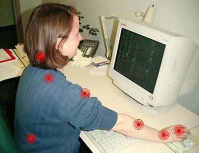 Figure - Douleurs associées avec l'utilisation d'une souris